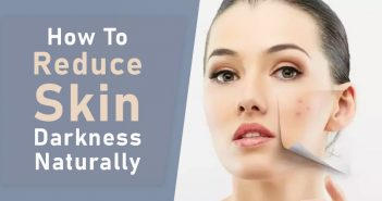 How To Reduce Skin Darkness Naturally