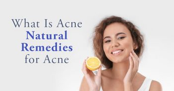 What Is Acne Natural Remedies for Acne